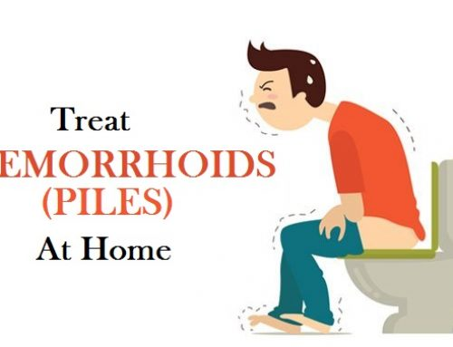 Remedies to Treat Hemorrhoids at Home