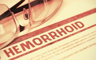 Piles Treatment, Hemorrhoids, What Is Piles, Piles Symptoms, Piles, Herbal Treatments, Herbal Products, bye bye piles