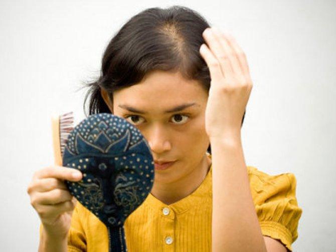 female pattern baldness, hair problem, bald women, baldness cure, bald head